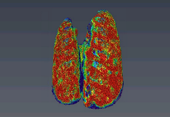 Photo of lung airways obtained by Phase-contrast X-ray imaging